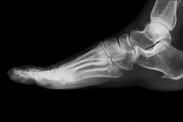 Bone Density Study - DEXA